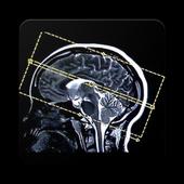 MASTER MRI